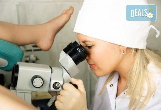 Гинекологичен преглед с ултразвуково изследване, микробиология на влагалищен секрет, течна базирана цитонамазка и HPV скрининг и хламидия (PCR) в Медицински център Репробиомед! - Снимка 2
