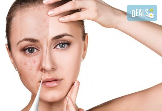 За кожа без несъвършенства! Ултразвуково почистване на лице в салон за красота Престиж-Аспарух! - Снимка 3