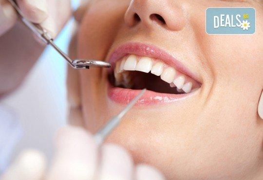 Погрижете се за здравето на зъбите си! Шиниране на разклатен, парадонтозен зъб и почистване на зъбен камък, от Дентална клиника Персенк! - Снимка 1