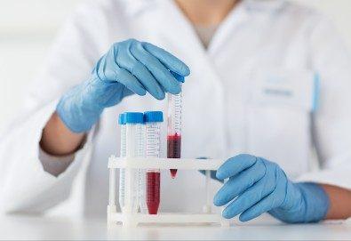 Пакет от 6 хормонални изследвания и пълна кръвна картина на 22 показателя в Медицински лаборатории Сана! - Снимка