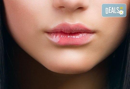 Безиглено влагане на хиалуронова киселина за уголемяване на устни с филър и маска в Wellness Center Ganesha! - Снимка 3