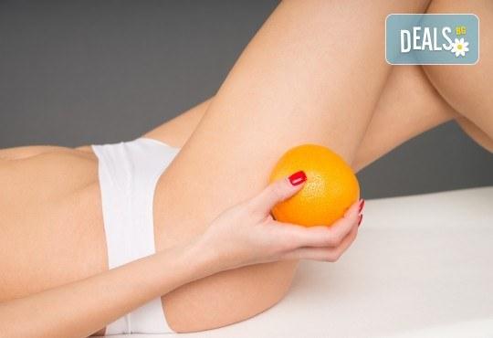 1 или 10 антицелулитни вендузни вакуум процедури със силен отслабващ ефект при опитен СПА терапевт в Senses Massage & Recreation! - Снимка 1