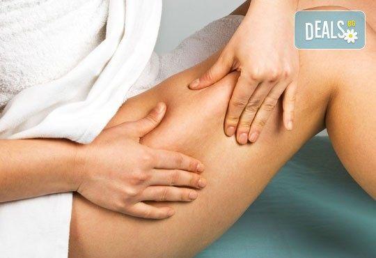 Антицелулитен масаж на ТРИ зони в Chocolate Studio