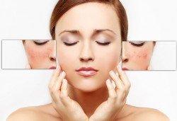 Перфектна кожа! IPL фотолечение на кожни дефекти на зона по избор с 80% отстъпка от Дерматокозметични центрове Енигма! - Снимка