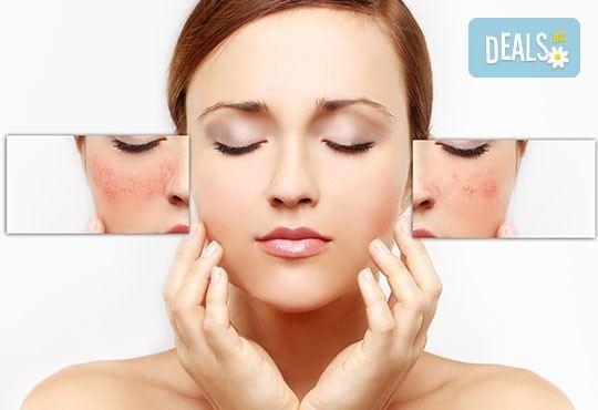 Перфектна кожа! IPL фотолечение на кожни дефекти на цяло лице с 80% отстъпка от Дерматокозметични центрове Енигма! - Снимка 1