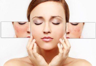 Перфектна кожа! IPL фотолечение на кожни дефекти на цяло лице с 80% отстъпка от Дерматокозметични центрове Енигма! - Снимка