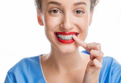 Усмихвайте се без притеснение! Поставяне на метални брекети за долна и горна челюст и 2 контролни прегледа в DentaLux! - Снимка