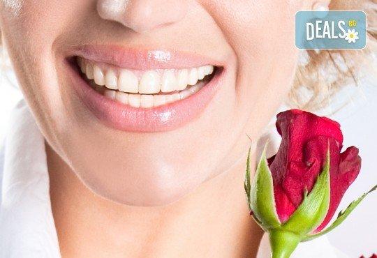 Пълна промяна за Вашите зъби! Поставяне на металокерамика в Стоматологичен кабинет Д-р Лозеви - Снимка 1