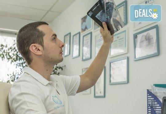 Красива усмивка! Почистване на зъбен камък с ултразвуков скалер в дентален кабинет д-р Чорбаджаков - жк Дружба - Снимка 4