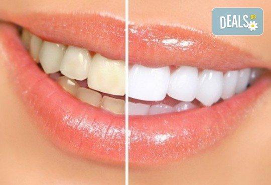 За красиви и бели зъби! Профилактичен преглед от специалист, почистване на зъбен камък и полиране с Air flow от VPDent, в центъра на София! - Снимка 2