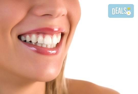 Блестяща усмивка! Почистване на зъбен камък, полиране, обстоен преглед и план за лечение в стоматологична клиника д-р Георгиев! - Снимка 4