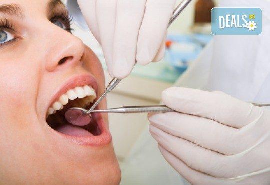 За здрави зъби! Лечение на кариес и поставяне на фотополимерна пломба от АГППДП Калиатеа Дент! - Снимка 2