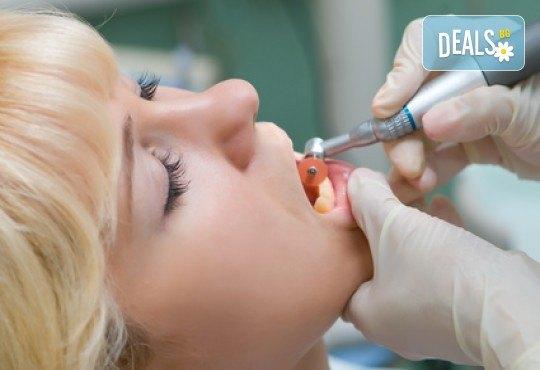За здрави зъби! Лечение на кариес и поставяне на фотополимерна пломба от АГППДП Калиатеа Дент! - Снимка 3