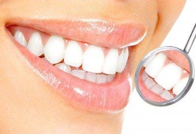 Преглед с интраорална камера, почистване на зъбен камък с ултразвук и полиране на зъби с Airflow от д-р Ценка Доганова! - Снимка