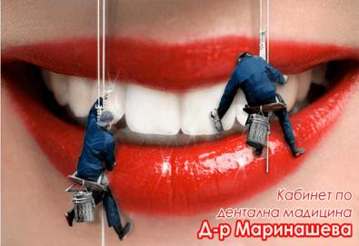 Почистване на зъбен камък и зъбна плака с ултразвук и полиране + бонус: 20 % отстъпка в ДК д-р Маринашева - Снимка