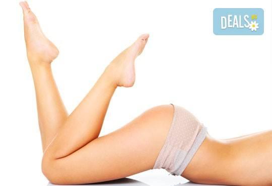 На супер цена! 1 или 10 процедури антицелулитен масаж на зона по избор във Flying Butterfly Beauty Studio! - Снимка 1