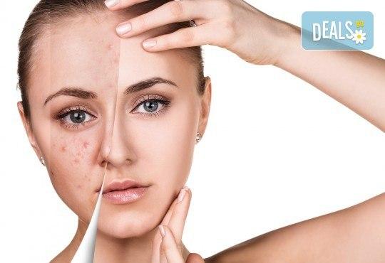 Свежа и сияйна кожа с мануално почистване на лице в 6 стъпки в салон за красота V and A Glamour! - Снимка 1