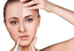 Свежа и сияйна кожа с мануално почистване на лице в 6 стъпки в салон за красота V and A Glamour! - Снимка