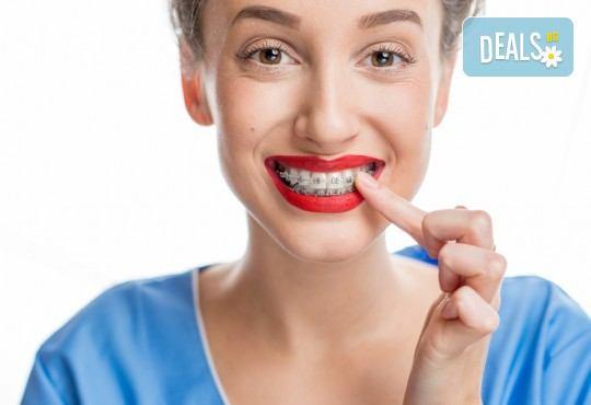 Консултация, поставяне на метални или керамични брекети и профилактичен преглед след поставянето им в DentaLux! - Снимка 1