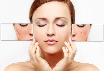 Отървете се от зачервяванията и розацеята! Лечебна терапия за куперозна кожа в салон за красота Женско царство - Студентски град или Център! - Снимка
