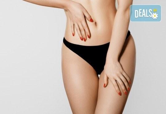 Гладка като коприна кожа! IPL+RF фотоепилация за жени на пълен интим и подмишници в салон за красота Beauty Angel! - Снимка 2
