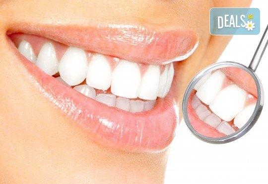 Професионално избелване на зъбите с LED лампа, почистване на зъбен камък, полиране, реминерализация и обстоен дентален преглед в Дентален кабинет Д-р Хаджийска! - Снимка 3