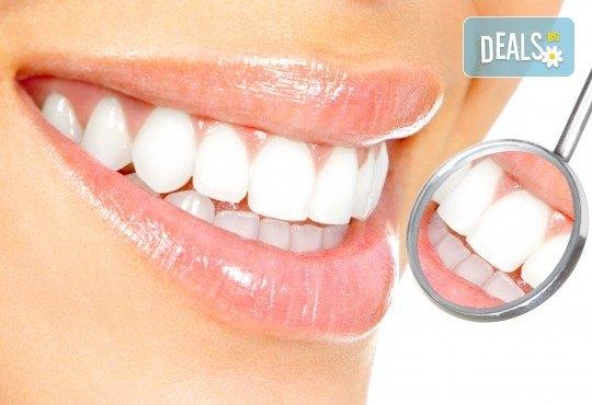 Преглед с интраорална камера, почистване на зъбен камък с ултразвук и полиране на зъби с Airflow от д-р Ценка Доганова! - Снимка 1