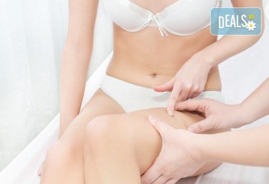Изящна фигура! Антицелулитен масаж на корем, крака или седалище - 1 или 5 процедури, в салон за красота Слънчев ден! - Снимка 3