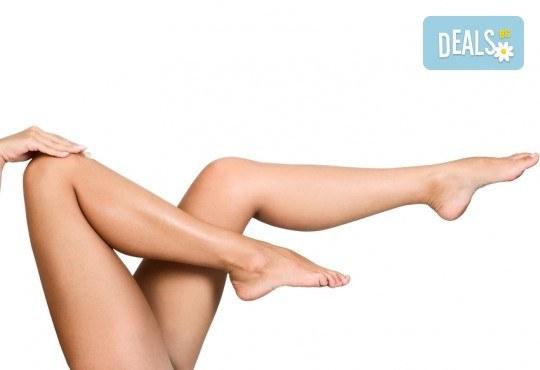 Гладка кожа! Пакет от 4 процедури с Elos епилация на цели крака или ръце за жени или мъже в BodyM Studio! - Снимка 2
