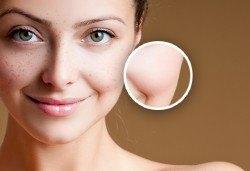 Терапия против пигментни петна и следи от акне с френска козметика Purles в Студио за красота Zarra Style! - Снимка