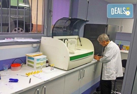 Измерване на костната плътност - остеодензитометрия, при лекар специалист по образна диагностика в ДКЦ Alexandra Health! - Снимка 2