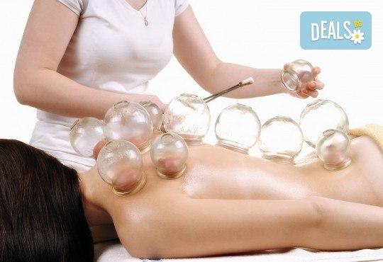 Избавете се от болките! 30-минутен лечебен масаж на гръб и вендузотерапия + 5-минутен масаж на глава в масажно студио Тандем! - Снимка 1