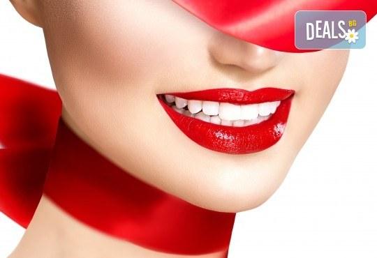 Професионално кабинетно избелване на зъби до 3 тона чрез иновативна швейцарска система Pure, която не уврежда емайла, в АГППДП Калиатеа Дент! - Снимка 1