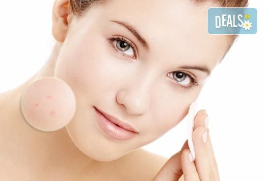 Диагностика при специалист, дълбоко почистване на лице чрез апарат със сребърни йони и напълно безболезнена лечебна антиакне терапия във фризьоро-козметичен салон Вили! - Снимка 4