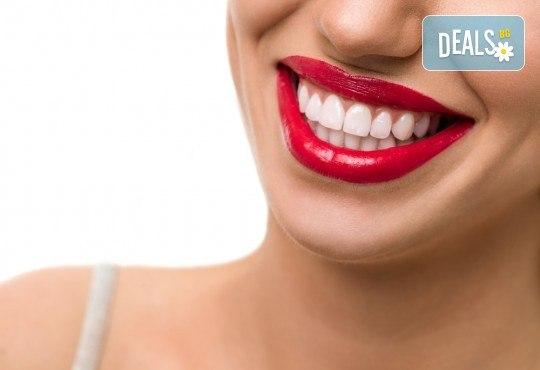 Професионално избелване на зъби с LED лампа, профилактичен преглед, ултразвуково почистване на плака и зъбен камък и полиране на зъбите с Аir Flow в дентален кабинет Казбек! - Снимка 1