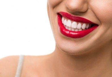 Професионално избелване на зъби с LED лампа, профилактичен преглед, ултразвуково почистване на плака и зъбен камък и полиране на зъбите с Аir Flow в дентален кабинет Казбек! - Снимка
