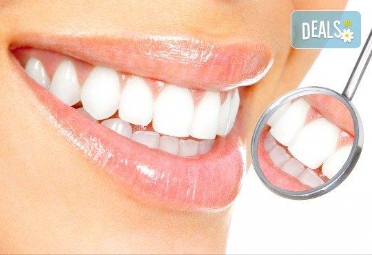 Професионално домашно избелване на зъби с индивидуални шини, профилактичен преглед, ултразвуково почистване на плака и зъбен камък и полиране на зъбите с Аir Flow в дентален кабинет Казбек! - Снимка 2