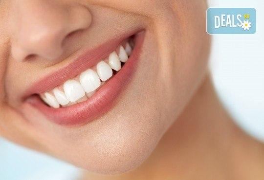 Професионално домашно избелване на зъби с индивидуални шини, профилактичен преглед, ултразвуково почистване на плака и зъбен камък и полиране на зъбите с Аir Flow в дентален кабинет Казбек! - Снимка 3