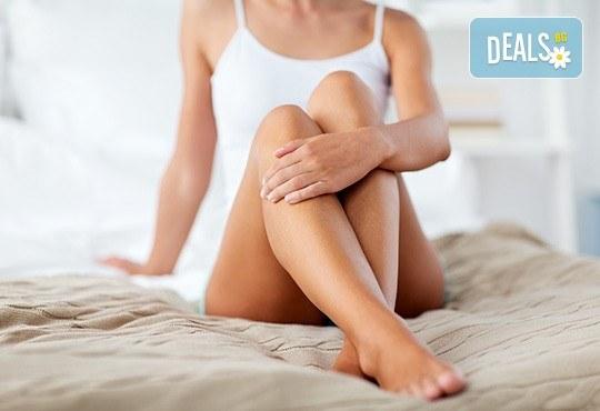 Избавете се от окосмяването! Вземете IPL фотоепилация на цели крака и 2 зони по избор в салон Орхидея - Студентски град! - Снимка 2