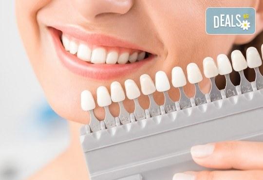 Професионално домашно избелване на зъби с индивидуални шини, профилактичен преглед, ултразвуково почистване на плака и зъбен камък в Дентален кабинет д-р Снежина Цекова! - Снимка 3