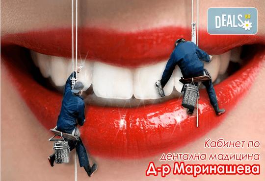 Почистване на зъбен камък и зъбна плака с ултразвук и полиране + бонус: 20 % отстъпка в ДК д-р Маринашева - Снимка 1