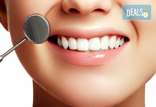 Обстоен преглед, почистване на зъбен камък с ултразвук, полиране и премахване на петна с airflow, съвети за орално здраве и възможност за визуализация на плака и план за лечение от Д-р Киров - Снимка 3