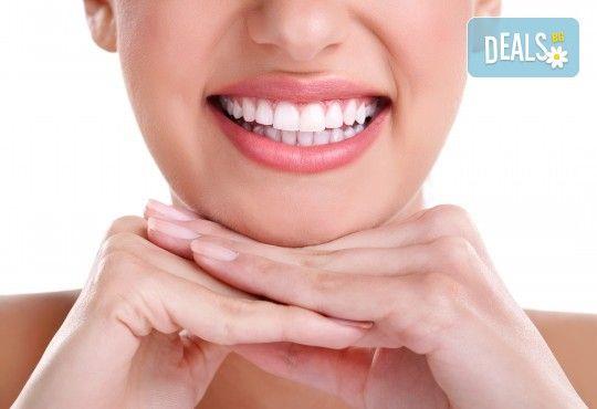 Обстоен преглед, почистване на зъбен камък с ултразвук, полиране и премахване на петна с airflow, съвети за орално здраве и възможност за визуализация на плака и план за лечение от Д-р Киров - Снимка 1