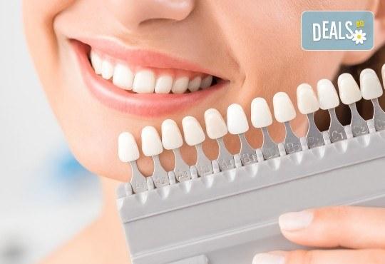 Домашно избелване на зъби с индивидуални шини, преглед и ултразвуково почистване на плака и зъбен камък в Дентален кабинет д-р Снежина Цекова - Снимка 1