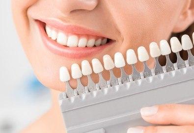 Домашно избелване на зъби с индивидуални шини, преглед и ултразвуково почистване на плака и зъбен камък в Дентален кабинет д-р Снежина Цекова - Снимка
