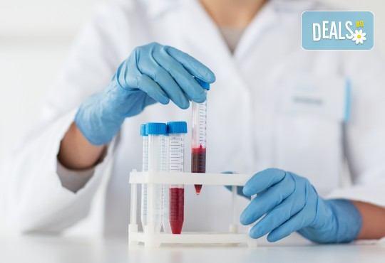 Кръвно изследване на един туморен маркер по избор в СМДЛ Кандиларов! - Снимка 3
