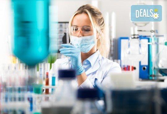 Изследване на туморен маркер по избор - PSA - простатно специфичен антиген или CEA карциноембрионален антиген, в СМДЛ Надежда 1! - Снимка 1