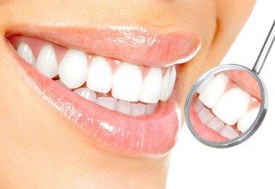 Почистване на зъбен камък с ултразвук и полиране, съвети за орална хигиена и подарък от д-р Диляна Кънчева! - Снимка