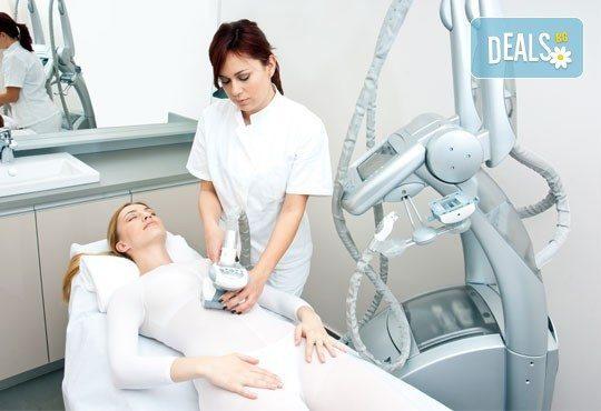 Сбогувайте се с портокаловата кожа! 1 или 5 антицелулитни масажа на всички засегнати зони и бонус: 1 процедура LPG в салон Женско царство, Студентски град или Центъра! - Снимка 3