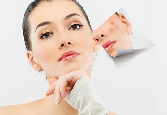 За красива и сияйна кожа без несъвършенства! Младежка анти-акне терапия в осем стъпки в салон за красота Ванеси